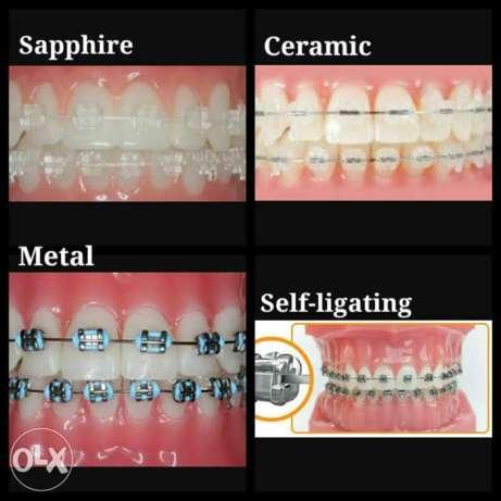 Dental Braces and EF Braces for children